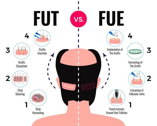 Types of Hair Transplants